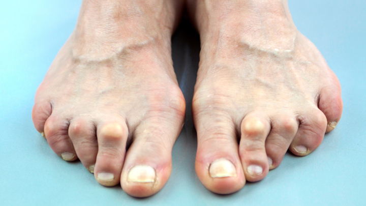 latest treatment for rheumatoid arthritis