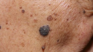 Melanoma-on-the-face