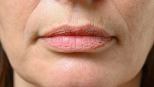 Are you suffering from dry and cracked lips? This is your answer!