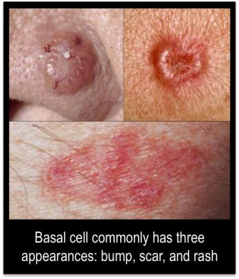 Basal Cell Carcinoma. Photo via Pinterest.