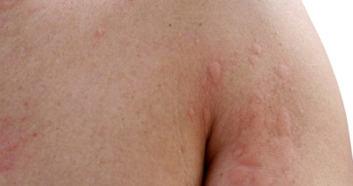 Three reasons you might be breaking out in hives this summer