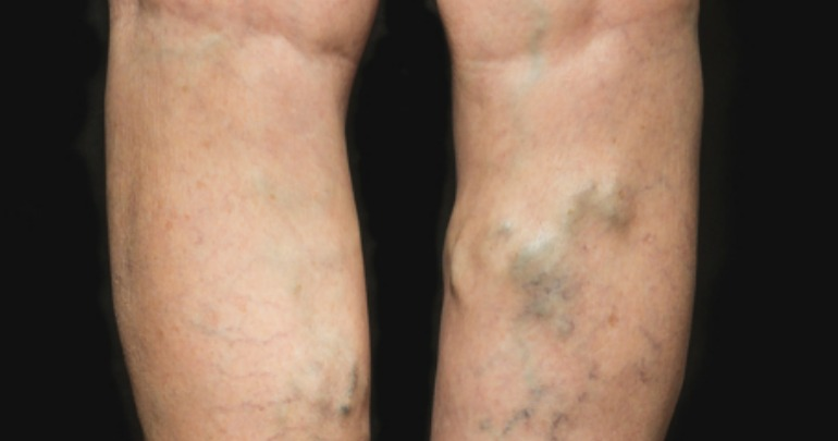 how to fix varicose veins naturally