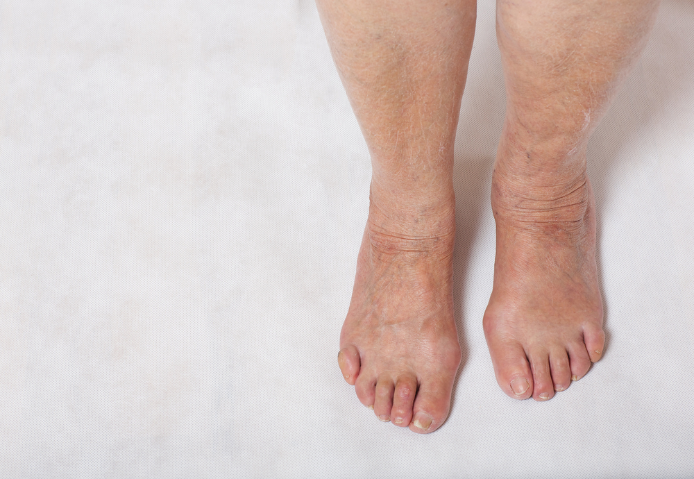 How To Stop Legs From Swelling On A Long Flight Travel At 60