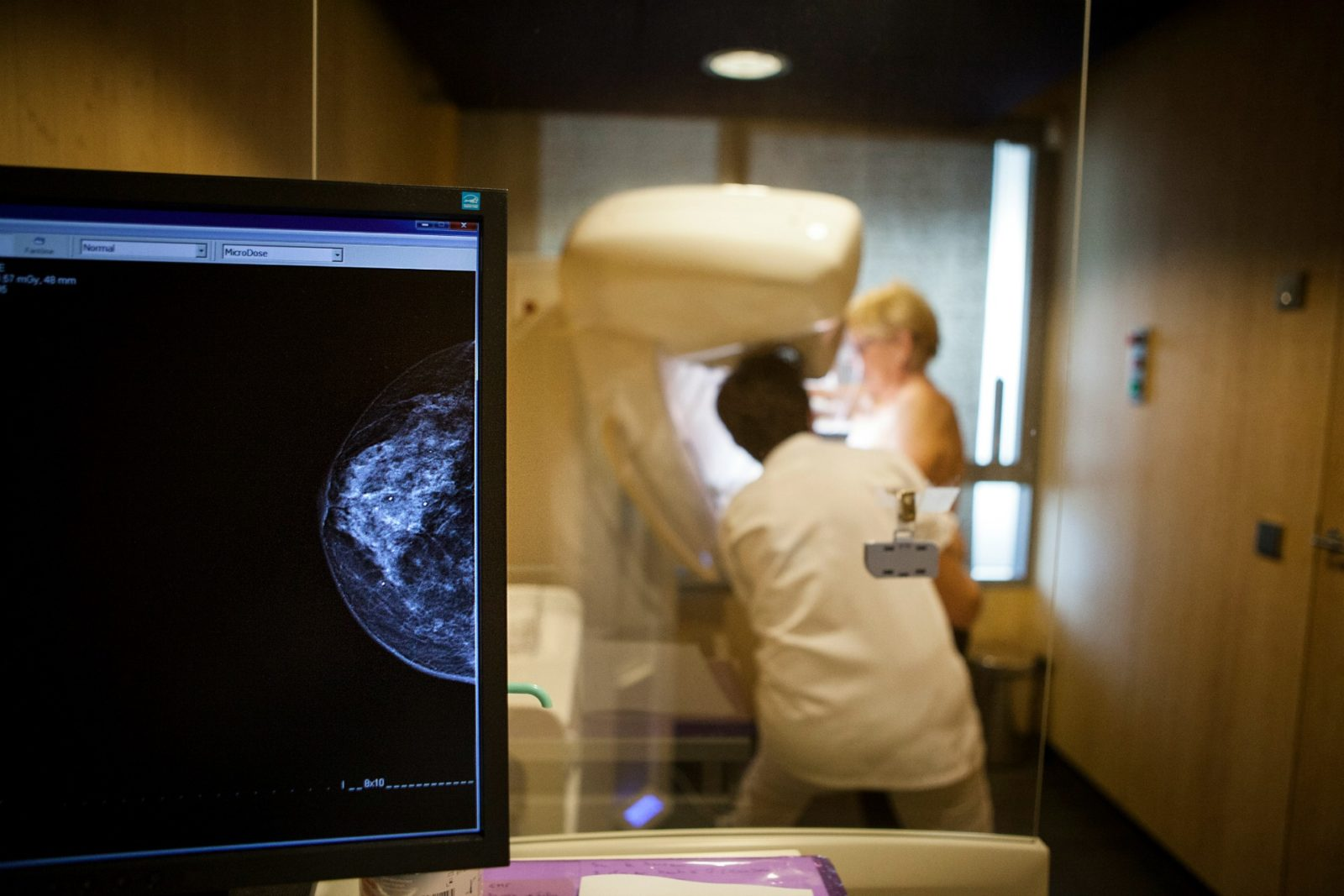 Women should undergo mammograms every two years as part of a regular breast cancer check.
