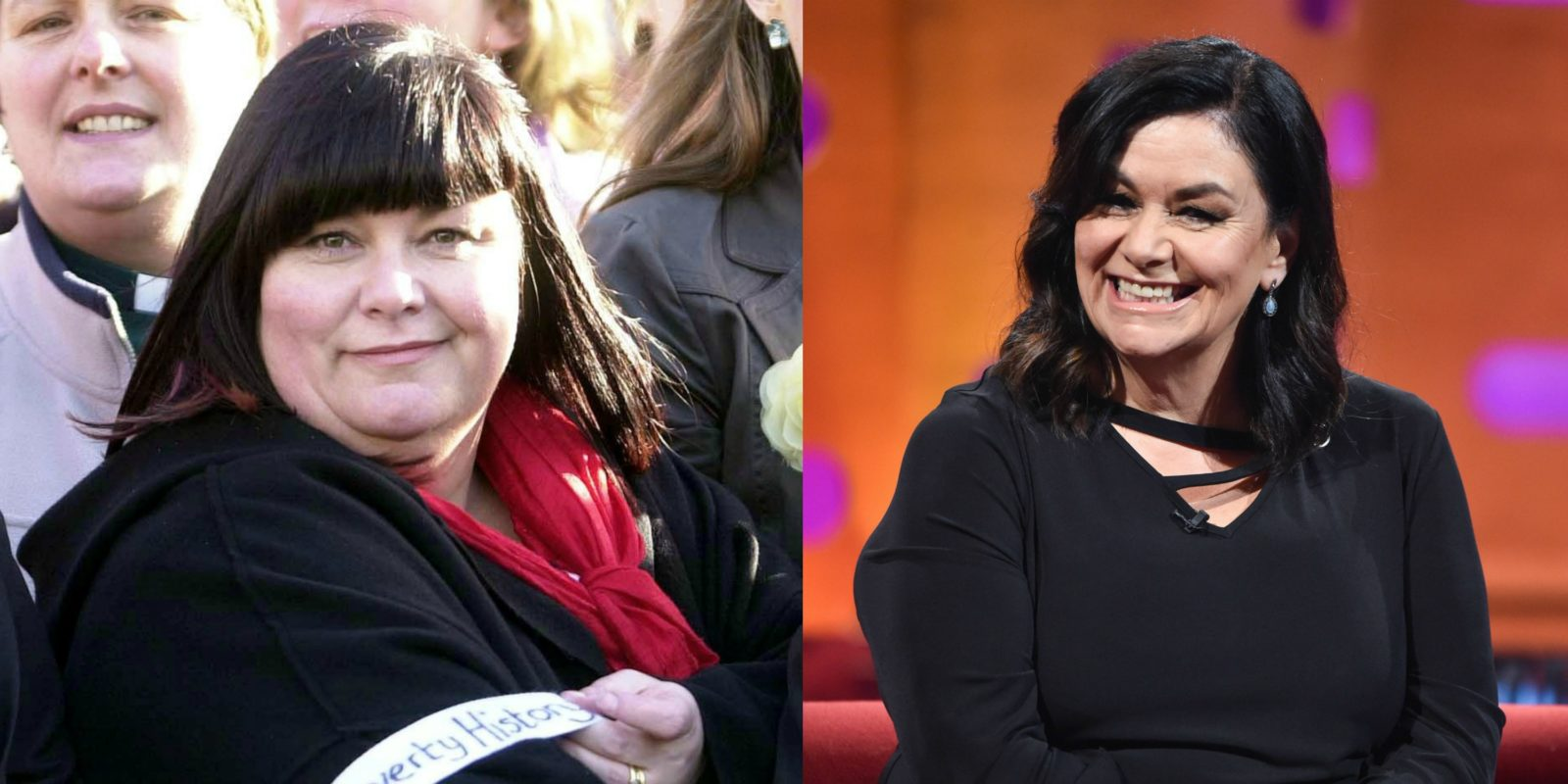 Dawn French has undergone a major transformation. Source: Getty.